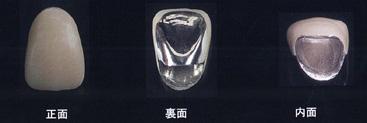 レジン前装冠(金銀パラジウム合金とレジン材料)