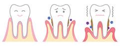 歯周病になると